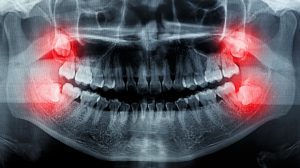 X-ray of tooth impaction