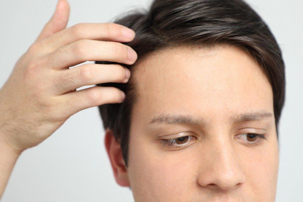 Hair Transplantation Effect on a Man