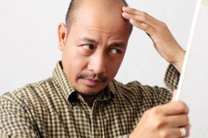 man checking his balding head
