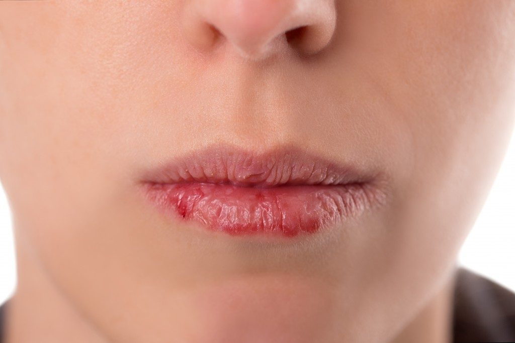 Closeup womans face with brittle and dry lips, concept lip salve and wounds