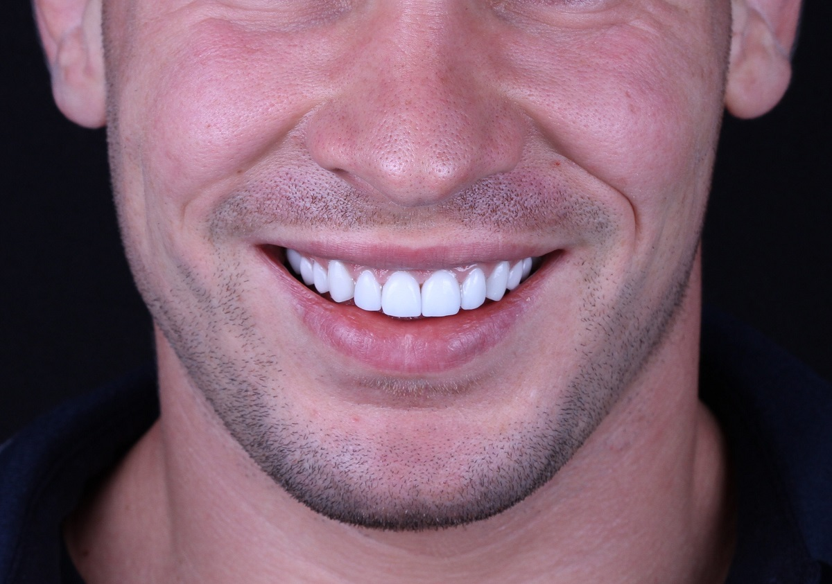 man with white teeth